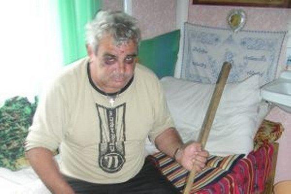 Miestny obyvateľ, vtedy 49-ročný Pavol Tabák, prišiel v roku 2006 k početným podliatinám, pomliaždeninám a tržným ranám. Vinil z toho Pavla Faktora.