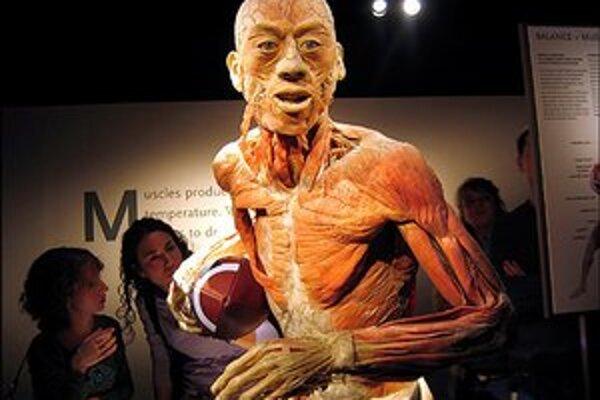 Z výstavy The Human Body Exhibition.