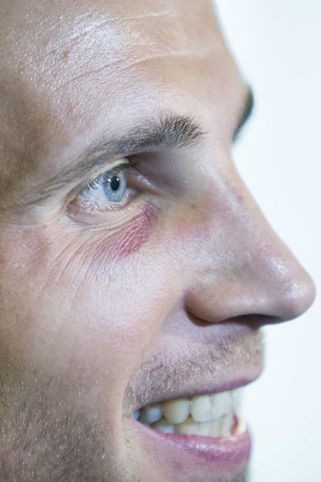 Peter Pekarík má pre opuch problémy s videním.