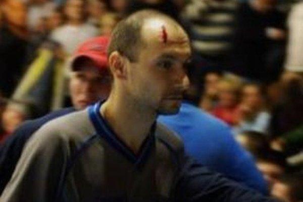 Podobný incident, ako v Prievidzi, sa odohral v roku 2011 v Spišskej Novej Vsi.