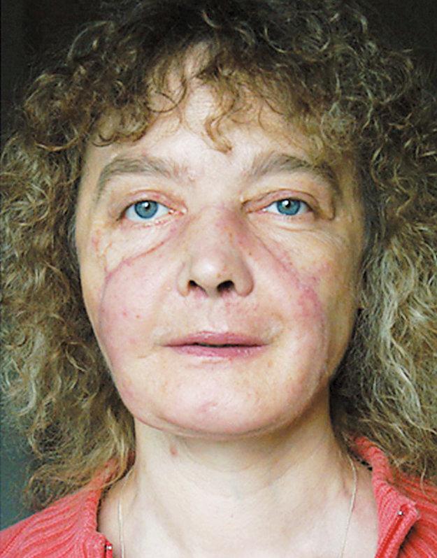 Isabelle Dinoire krátko po operácii