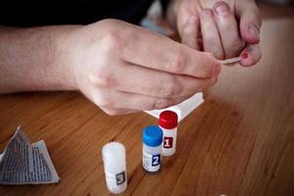 Test na prítomnosť HIV vírusu.