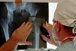 Slovenský artroplastický register už vyše dva roky automaticky nevydáva potvrdenia o operácii bedrového alebo kolenného kĺbu.  (ilustračné foto)