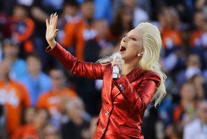 Vieme ešte Lady Gagu brať ako serióznu speváčku?