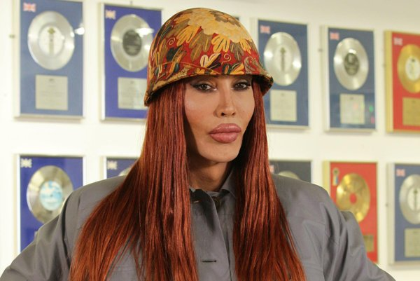 Pete Burns.