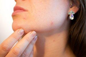 Problémy s akné mal takmer každý.