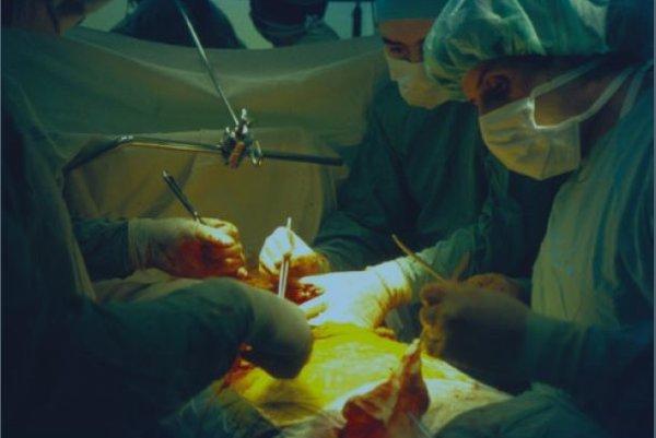 Z prvej transplantácie pečene v roku 1997.