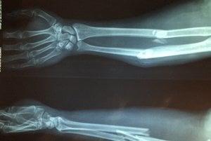 Zlomené kosti treba pred zrastením uložiť do želanej pozície.