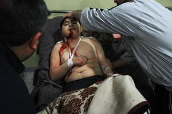 Ošetrovanie zraneného chlapca v meste Homs.