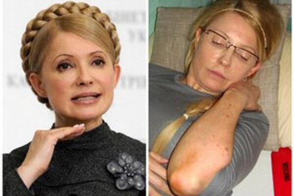 Tymošenková sa sťažovala na násilie dozorcov.