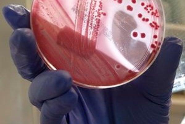 Baktéria E.coli.