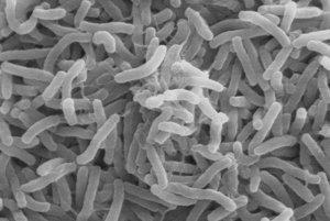 Cholera sa v 19. storočí rozšírila z delty indickej Gangy do celého sveta. V histórii prepuklo už celkovo šesť pandémií, ktoré zabili milióny ľudí. Na choleru naďalej ročne zomiera 20 až 150-tisíc ľudí.