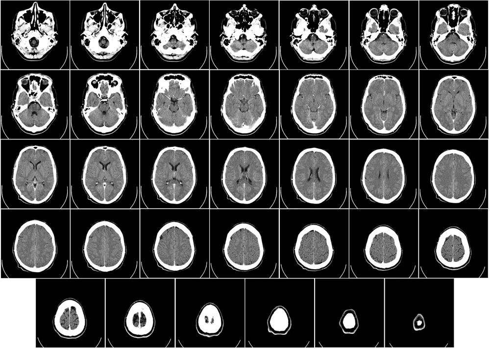 Ľudský mozog pri počítačovej tomografii.