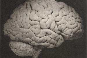 Ľudský mozog.
