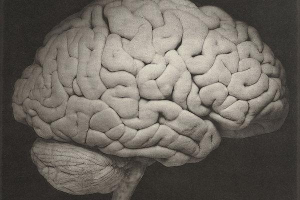 Základnou zložkou bielej hmoty mozgu a miechy je myelín. Bez neho sa objavia príznaky sklerózy.