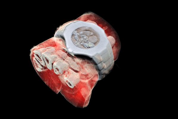 Farebný 3D sken zápästia s hodinkami zobrazuje časť prstových kostí v bielej farbe a okolité tkanivo v červenej farbe.