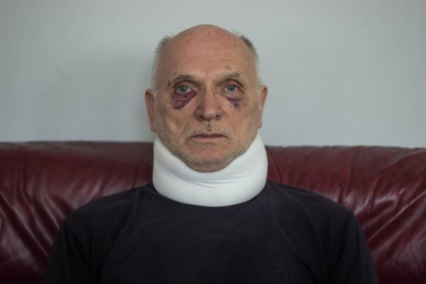 Ladislav Škrlík. Tvrdí, že tieto zranenia mu spôsobil policajt a jeho otec.
