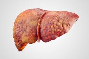 Realistické zobrazenie cirhózy ľudskej pečene.