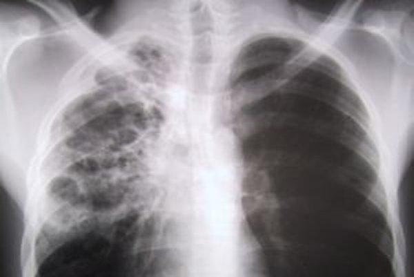 Liek Vargatef slúži na liečbu rakoviny pľúc v pokročilom štádiu s metastázami a po chemoterapii.