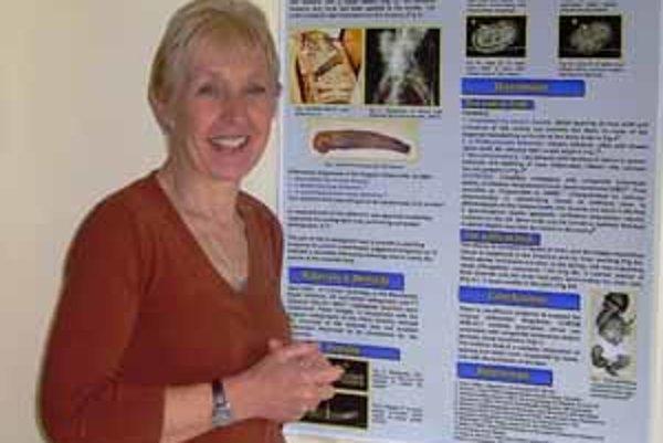Jacky Finchová na vedeckej konferencii, vpravo kópia starorímskej protézy nohy z Kapuy, doterajšej držiteľky vekového rekordu funkčnej protézy.