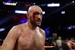 Tyson Fury po zápase s Wallinom.
