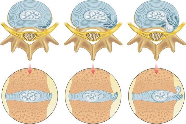Ak sa rôsolovité jadro platničky posunie mimo stredu, ochranné vlákna sa namáhajú a poškodzujú. Jadro sa postupne vyklenie von z prstenca a zatlačí na nervový koreň.