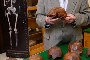 Palaeoantropológ Russell L. Ciochon s replikami lebiek, ktoré objavili na nálezisku na ostrove Jáva.