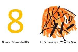 Muž známy iba pod iniciálkami RFS má veľmi vzácnu mozgovú poruchu, ktorá mu bráni vidieť čísla. Vľavo je osmička, ako mu ju ukázali vedci. Vpravo je kresba toho, čo videl.