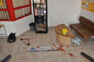 Na mieste zápasu ostala krv zraneného muža.