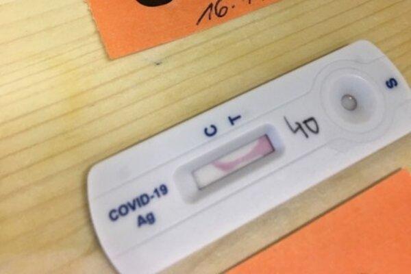 Z niektorých testov sa nedal odčítať výsledok.