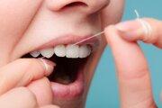 Čistenie zubov zubnou niťou.