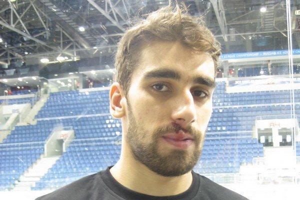 Roman Rác (175 cm) si zo stredajšieho tréningu odniesol ranu na hornej pere, ale to neohrozí jeho štart v tíme Slovenska na Nemeckom pohári.