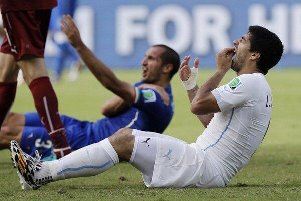 Luis Suárez tesne po incidente s Chiellinim.