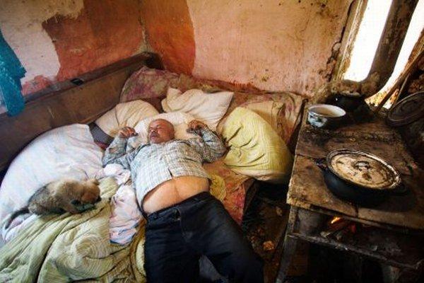 Muž z chatrče v osade Kostoľany má cukrovku.