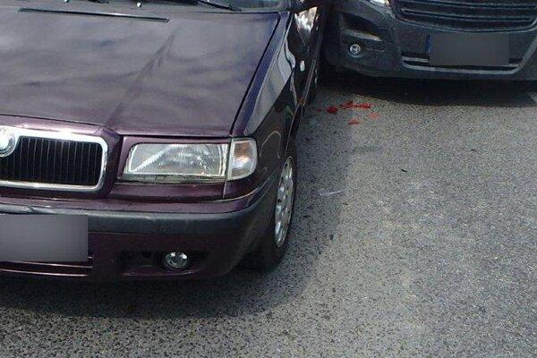 Pri dopravnej nehode utrpela 22-ročná spolujazdkyňa z Felicie predbežne ľahké zranenia.