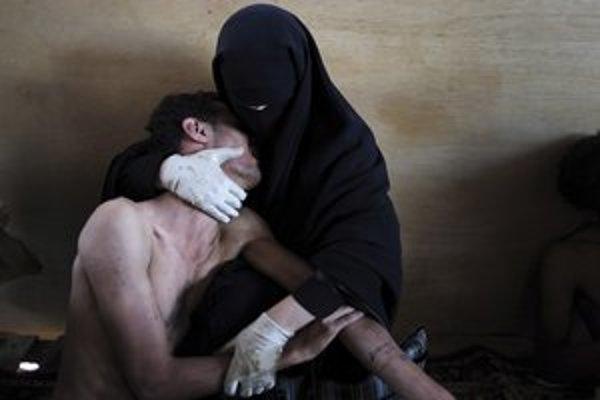 Celkový víťaz: Fotografia Španiela Samuela Arandu zobrazuje ženu, ktorá drží zraneného príbuzného počas protestov proti jemenskému prezidentovi Sálihovi v meste Saná.