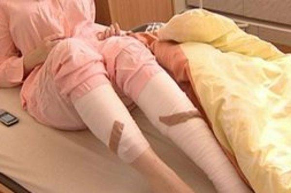 Skončila v nemocnici. Ak budú popáleniny hlboké, môže prísť na rad operácia..