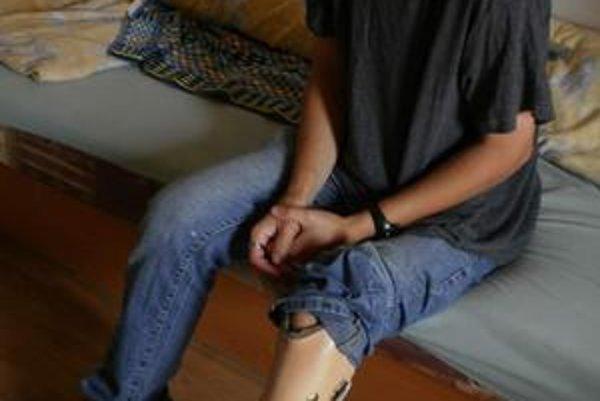 Na ľavej kratšej nohe musí nosiť špeciálnu protézu.