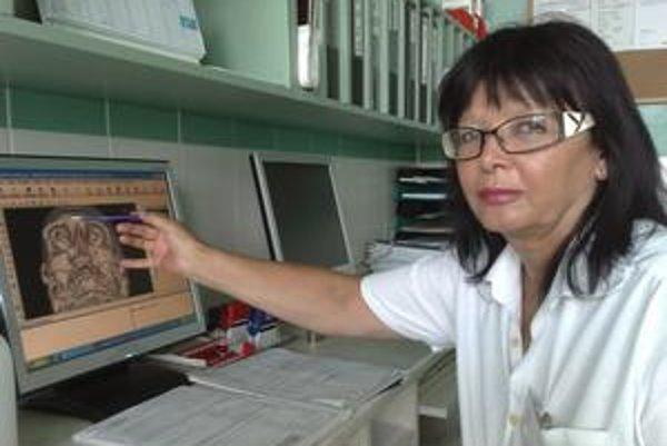 Dobitý muž utrpel viacnásobné zlomeniny kostí v tvárovej časti, hovorí primárka Viera Koperdanová.