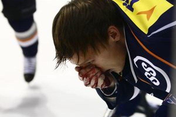 Ondrej Gmitter. Takto sa v zápase s Trenčínom z jeho tváre rinula krv.
