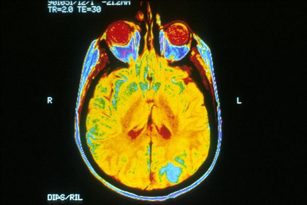 Sken mozgu pomocou magnetickej rezonancie
