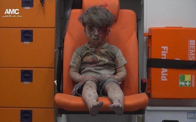 Päťročný Omran po tom, ako ho Biele helmy vytiahli z trosiek Aleppa.