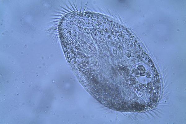 Nálevník Parentocirrus hortualis.