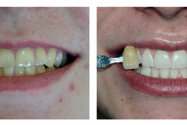 Ukážka pred a po bielení systémom Pure Whitening.