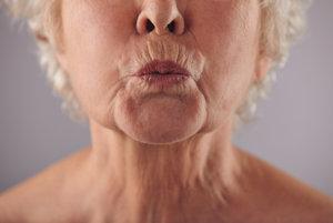 Tvárové cvičenie vás zbaví vrások okolo úst, na brade i krku.
