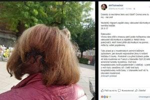 Žena vo Viedni naozaj utrpela zranenia. Polícia však nepovedala ani to, či išlo o cudzie zavinenie.