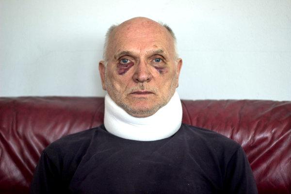Ako sa mu to stalo? Takto vyzeral dôchodca po incidente.