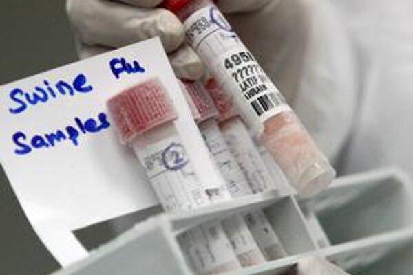 Vzorky testujú na novú chrípku v Banskej Bystrici a Bratislave.