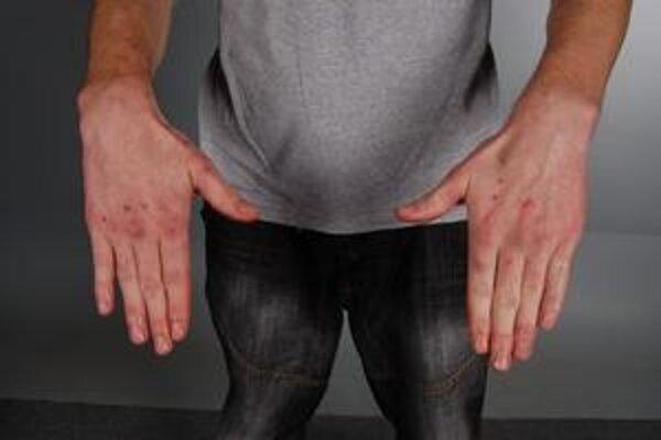 Zranené ruky obvineného muža.