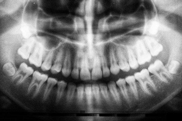 Zuby múdrosti niekedy tlačia na vedľajšie stoličky. Pod tlakom sa ich susedia môžu roztrieštiť.